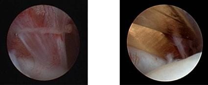 Изображение - Диск челюстного сустава adhaesion_durchtrennung