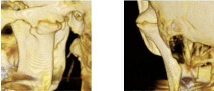 Посттравматический анкилоз левого височно-нижнечелюстного сустава