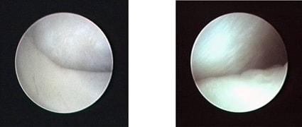 Артроскопическая картина здорового левого височно-нижнечелюстного сустава