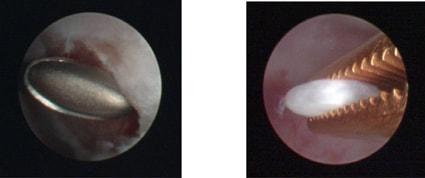 Лечение мелкой кисты ВНЧС