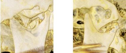 Перелом суставной головки до и после остеосинтеза двумя титановыми винтами