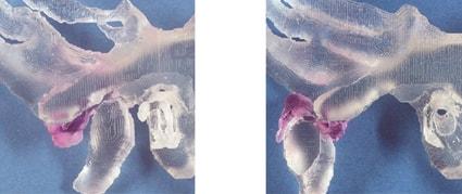 Вправляемое смещение суставного диска. Диск вывихивается вперед, если рот закрыт, и скользит назад на мыщелковый отросток, если рот открывается