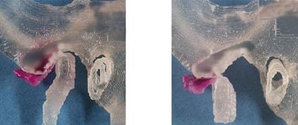 Невправляемое смещение суставного диска. Диск полностью вывихивается вперед при закрытом положении рта и не скользит назад на мыщелковый отросток при открывании рта