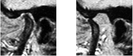МРТ сканы пациента с тяжелым остеоартритм ВНЧС