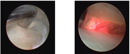 Высвобождение сустаного диска спереди с помощью острого диатермического зонда и лазера Holmium:YAG