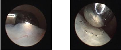 Коагуляция задней связки диска с помощью тупоконечного диатермического зонда